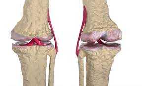 Kıkırdak Yaralanmalarının Belirtileri Nelerdir?