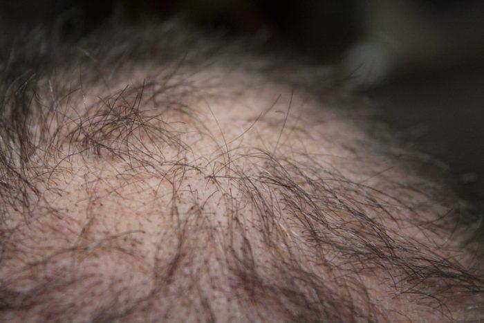 Mezoterapi Uygulamasının Saç İçin Faydaları Nelerdir?
