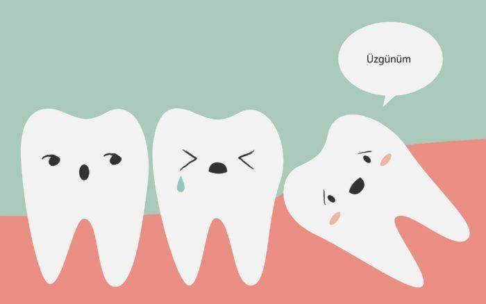 Yirmilik Dişler Nedir? Nelere Sebep Olurlar ve Tedavisi Nasıldır?