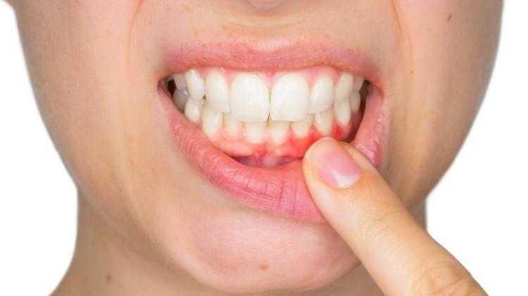 Diş Eti İltihabı İçin 5 Doğal Çözüm