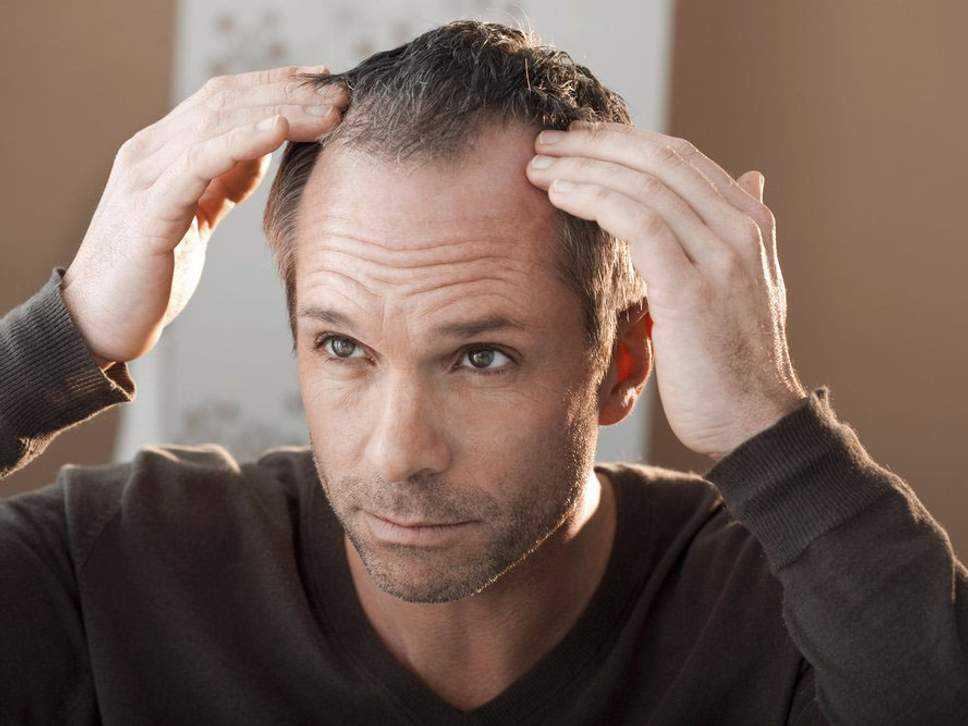 5 Yöntemle Saç Dökülmesini Önlemek