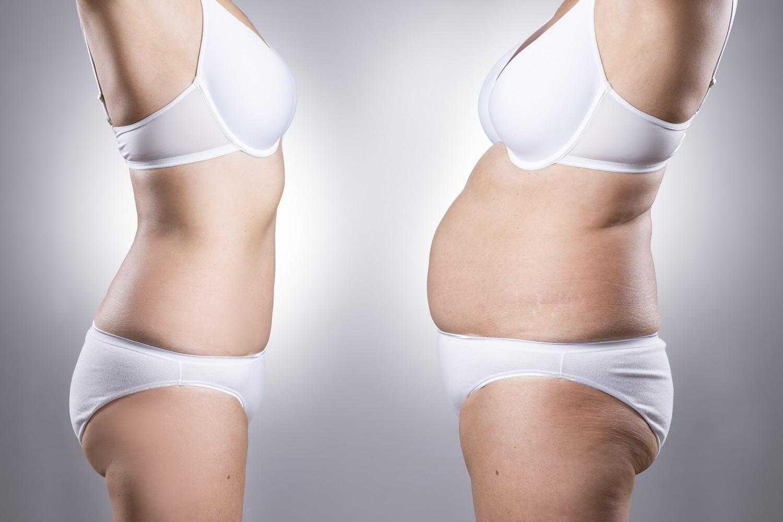 Karın Germe Ameliyatı Nasıl Yapılır? Abdominoplasti Nedir?