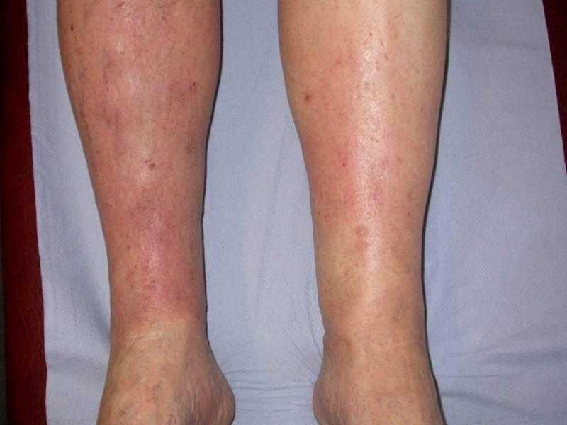 Gravitasyonel Egzama (Staz Dermatitis) Belirtileri, Nedenleri ve Tedavisi