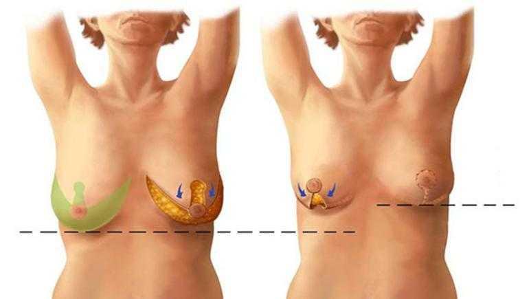 Meme Dikleştirme Ameliyatı Nasıl Yapılır? Göğüs Dikleştirme Yöntemleri
