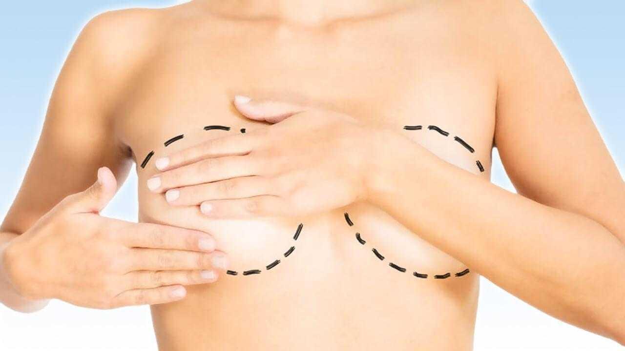 Göğüs Estetiği (Meme Estetiği) Yöntemleri Nelerdir, Nasıl Yapılır?