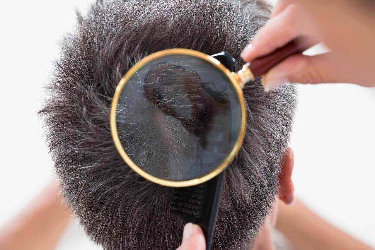 Erkek Tipi Saç Dökülmesi ve Kadın Tipi Saç Dökülmesi Nedir?
