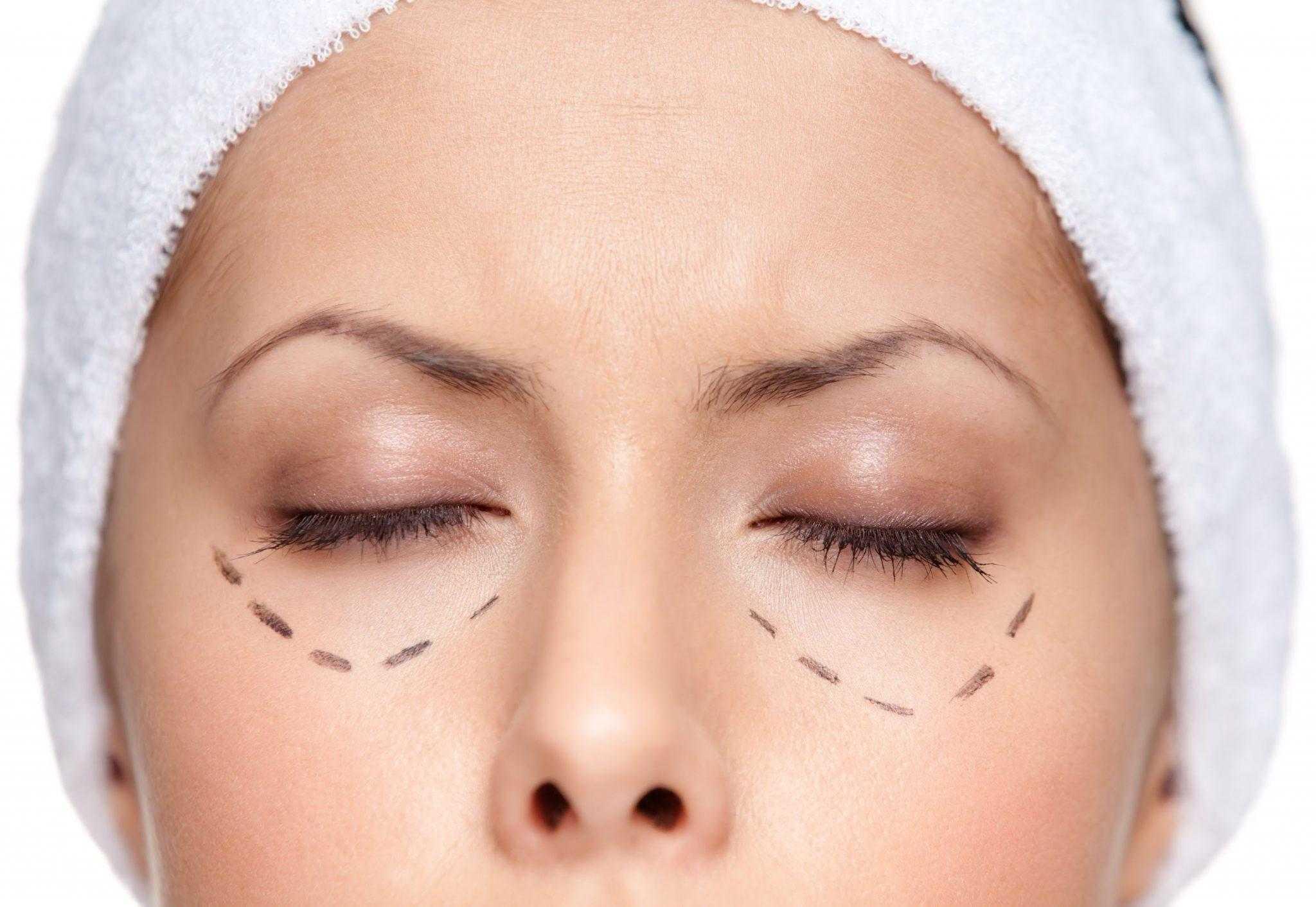 Göz Altı Torbası Neden Olur, Nasıl Tedavi Edilir?
