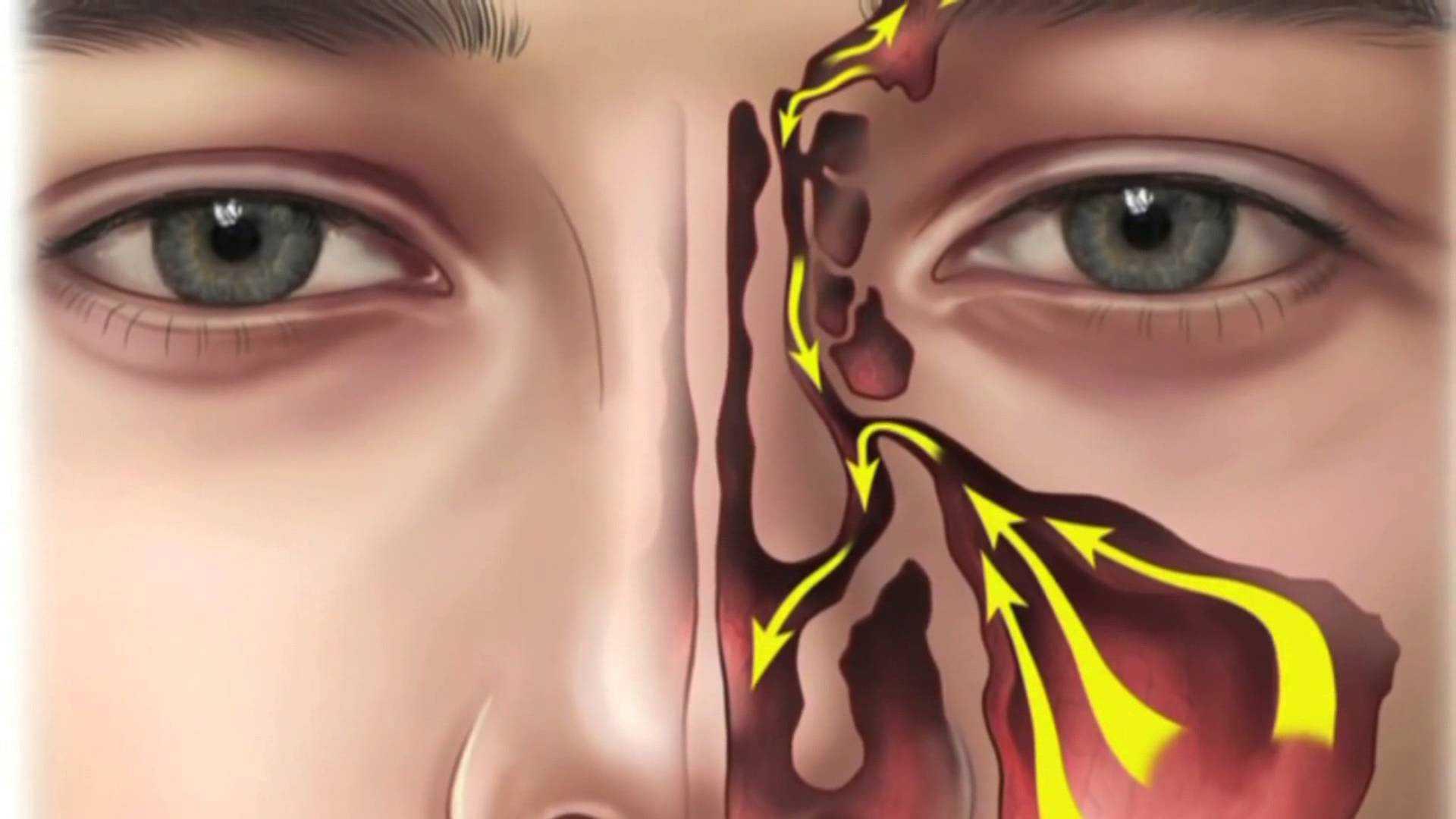 Sinüzit Nedir? Alerjik Sinüzit (Rinit) Belirtileri ve Tedavisi