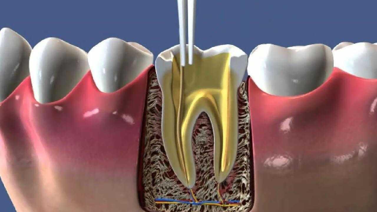 Diş Tedavisinin En Ünlülerinden Kanal Tedavisi Hakkında Tüm Bilinmesi Gerekenler