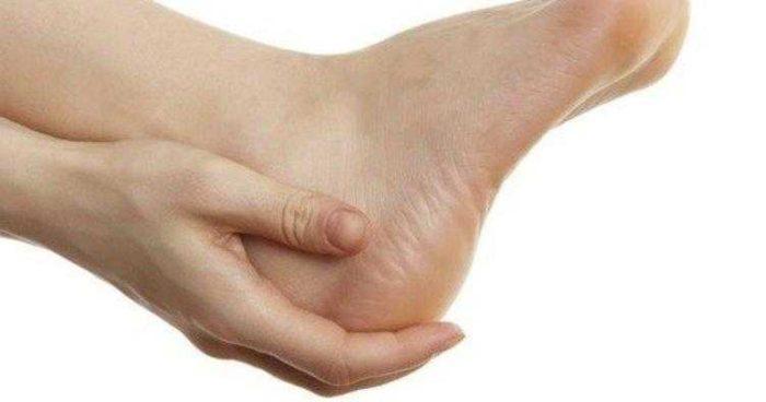 Topuk Dikeni Nasıl Anlaşılır? Topuk Dikeni Tedavisi Nasıl Yapılır?