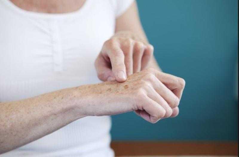Yaşlılık Lekeleri Nasıl Geçer? Yaşlılık Lekeleri İçin Doğal Ve Kimyasal Tedavi Yöntemleri