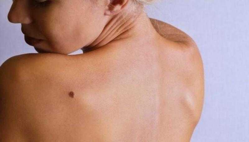 Cilt Kanseri Nedir, Nasıl Tedavi Edilir?