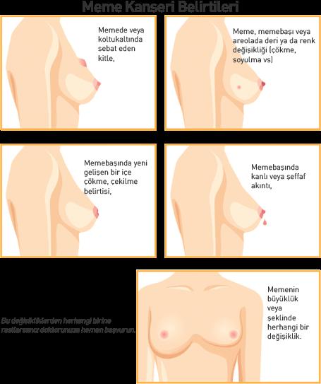 Meme Kanseri Belirtileri ve Tedavi Yöntemleri